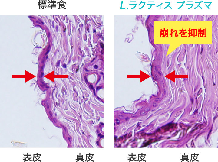 と プラズマ は 乳酸菌 「プラズマ乳酸菌」について
